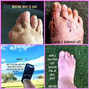 bunion op pictures